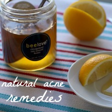 Acne_remedies